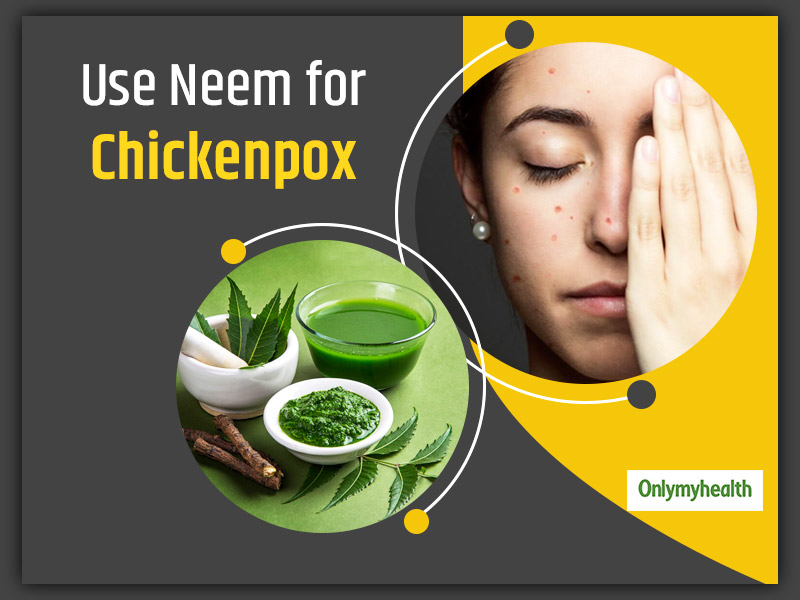 Chickenpox Home Remedies: Here's How To Use Neem to Treat Chickenpox