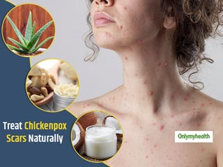 It Is Possible To Treat Chickenpox Scars, Try These <strong>Home</strong> <strong>Remedies</strong>