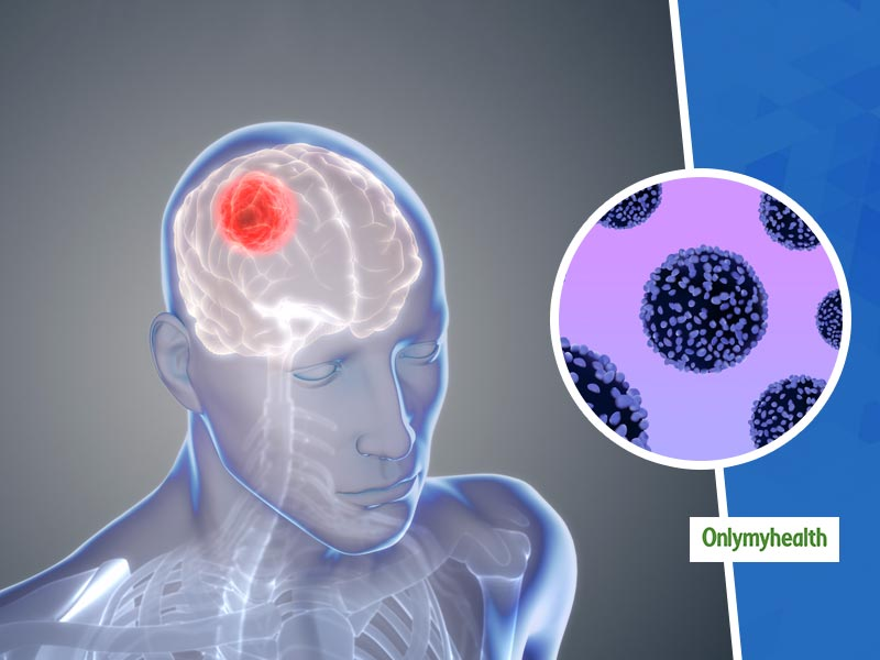Not All Brain Tumours Are Cancerous And Fatal, Says A Study