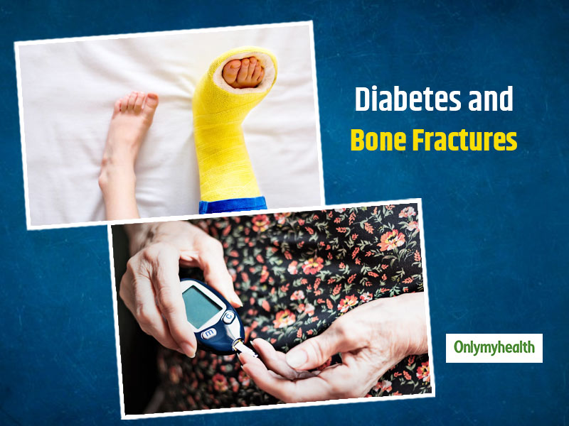 Study: Diabetic People Are More Likely To Get Bone Fractures