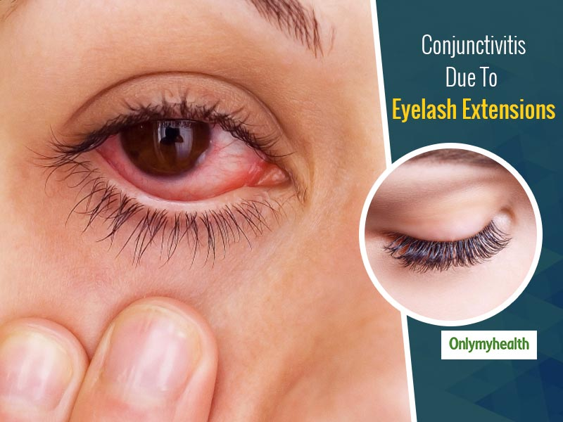 Eyelash Extensions Can Cause Conjunctivitis, Here Is What You Need To Know