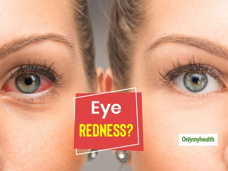 Red Eyes? Here Are The 5 Reasons Behind It