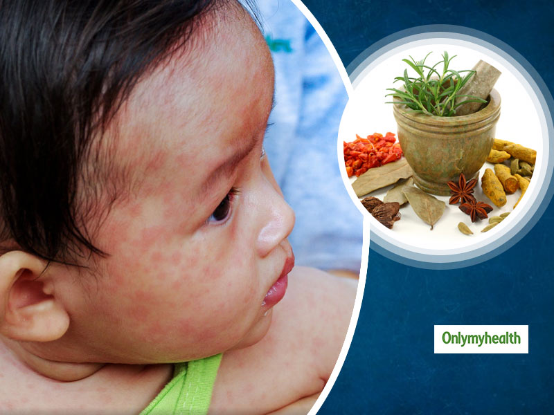 Measles Immunization Day 2020: Ayurvedic Tips For Prevention And Cure