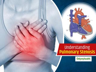 All You Need To Know About A Heart Condition Termed As Pulmonary Stenosis, Explains Dr Gaikwad
