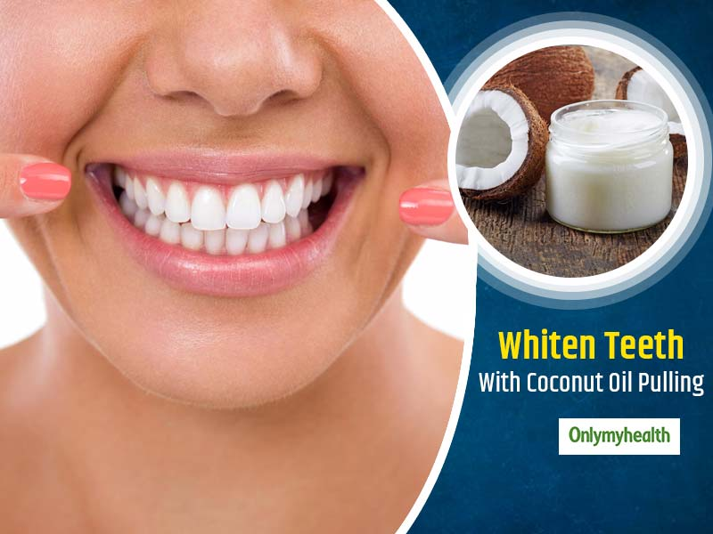 World Oral Health Day 2020: Benefits Of Coconut Oil Pulling For Oral Health