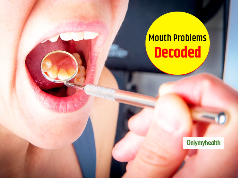 Oral Health Awareness: Know About The 5 Common Mouth Problems And Prevention Tips