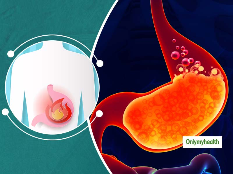 Know The Difference Between Heartburn And Acidity By Dr Roy Patankar
