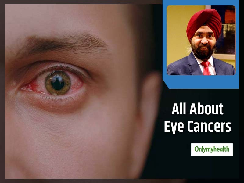 Types, Stages  And Basic Treatment For Eye Cancers Explained By Dr Mahipal Singh Sachdev