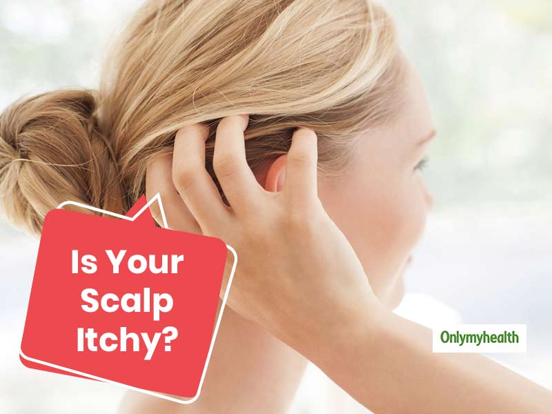 Summer Scalp Itchiness: If Your Scalp Is Being Itchy, Here's What You Should Do