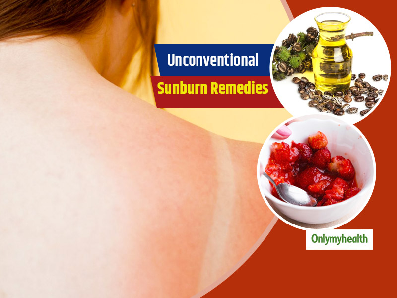 Sunburn Home Remedies: 5 Things That You Didn't Know Could Heal Sunburnt Skin