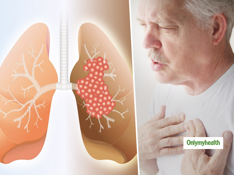 Lung Fibrosis: Know About The Risk Factors And Preventive Measures By This Chest Physician