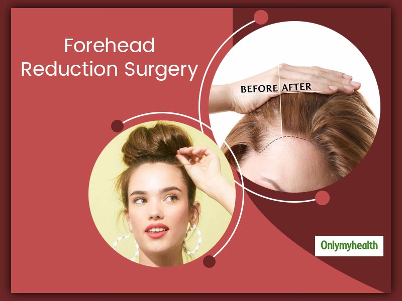 What Is Forehead Reduction Surgery? Know Everything About Its Risks And Side-Effects