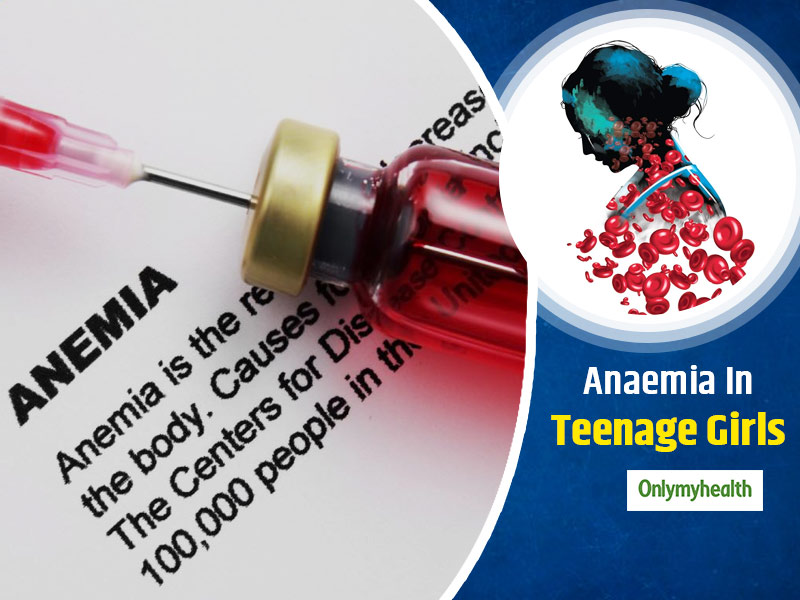 World Iron Deficiency Day 2020: Causes, Symptoms And Treatment Of Anaemia In Adolescent Girls
