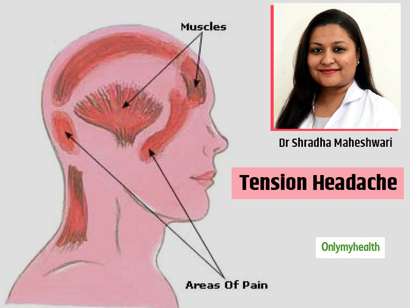 What Is Tension Headache? Causes, Symptoms, Treatment And Pain Management Tips