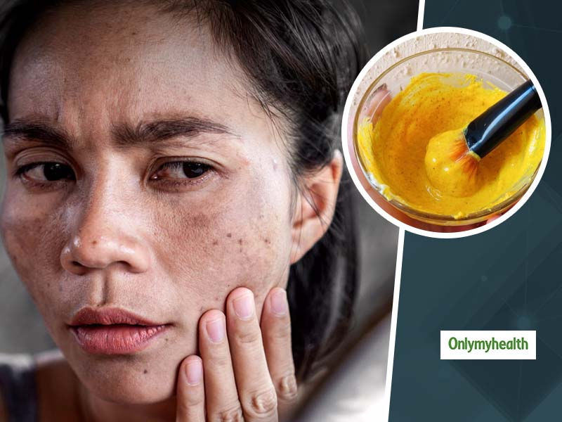 Dark Spots? Try These Orange Peel Powder Face Packs For Acne Prone Skin