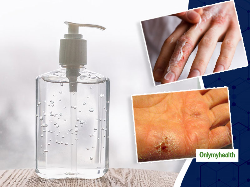 Dry, Cracked Skin On Hands And Knuckles? Here Are Some Tips And Tricks For Relief