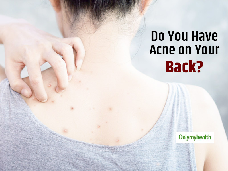 Acne On The Back Is Common, Know Back Acne Causes, Treatment and Prevention Tips