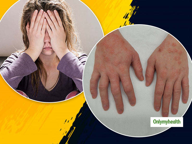 Can Stress Cause These Skin Problems? Read To Know More About It