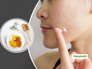 Here Are Four <strong>Natural</strong> Home Remedies To Banish Those Stubborn Skin Spots