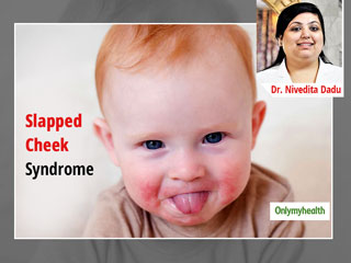 Fifth Disease or Slapped Cheek Syndrome: What It Is and How It Can Be Cured?