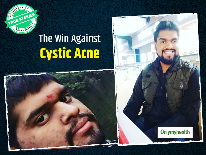 True Story: Struggles Of Puru Bansal Dealing With Painful Cystic Acne