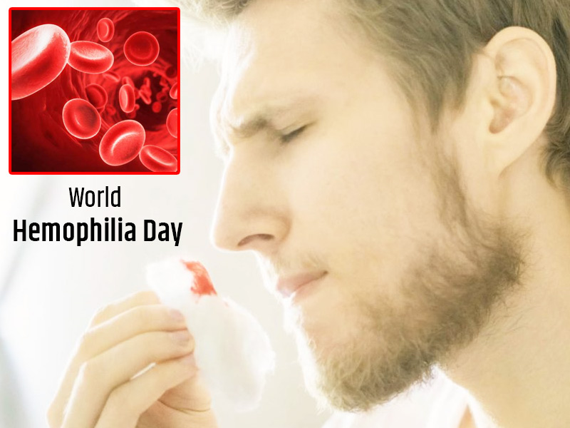 World Haemophilia Day: Experiencing Swelling Or Pain In Joints? It May Be Due To This Blood Disease