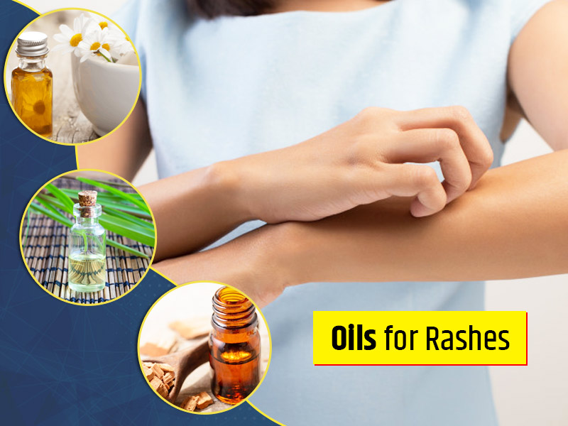 Soothe Summer Skin Rashes With These Essential Oils for Rashes