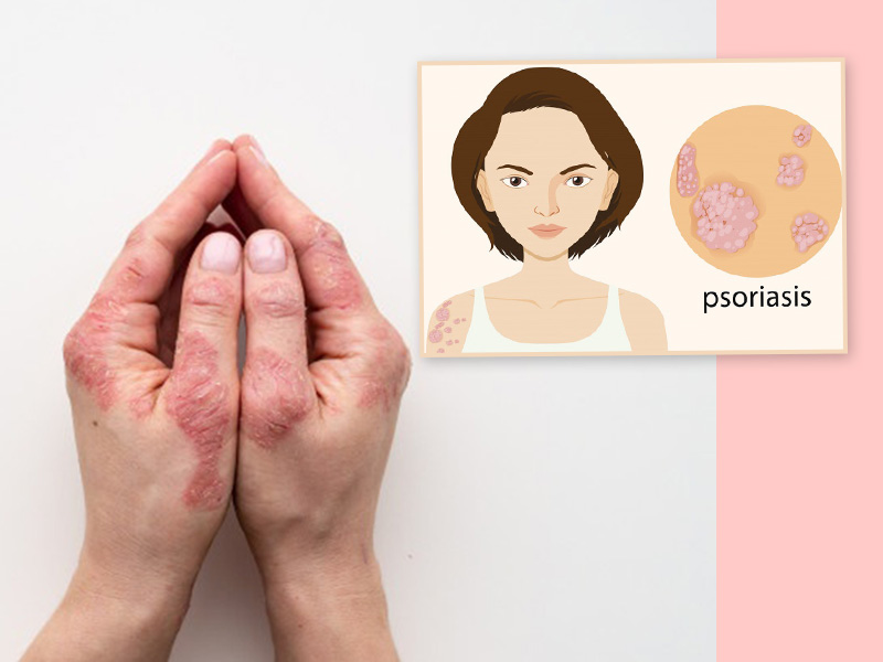 Home Remedies To Control Psoriasis Symptoms In Teenagers