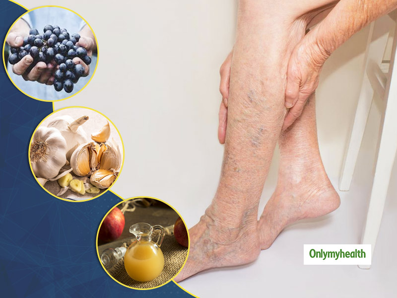 Here Are Some Natural Home Remedies To Get Rid Of Varicose Veins