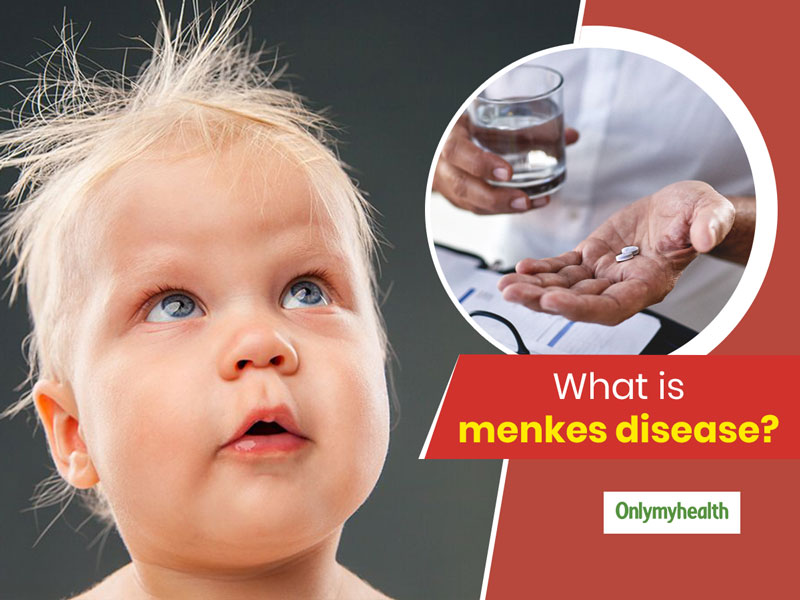 Menkes Syndrome (MNK): Know Everything About The Disorder That Affects Copper Levels In Body