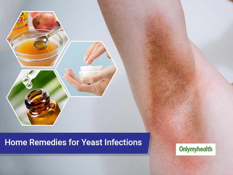 How To Treat Yeast Infections At Home?
