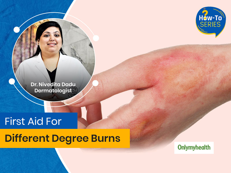 How To Treat A Skin Burn? Know From Dermatologist