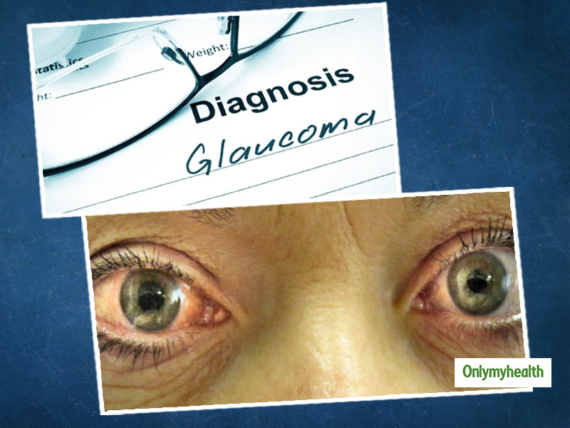 What Is Glaucoma? Here Are Its Symptoms, Causes And Treatment