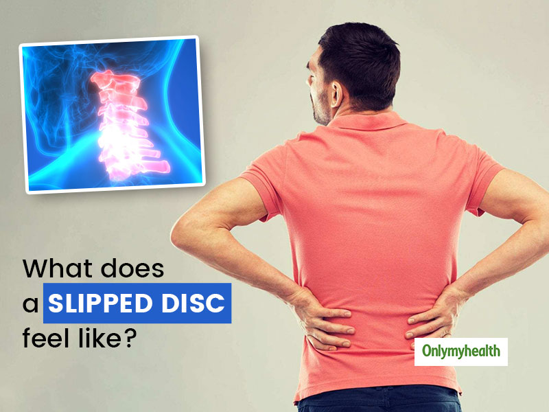 What Is A Slipped Disc? Here Are Its Signs, Causes Treatment And Prevention Tips