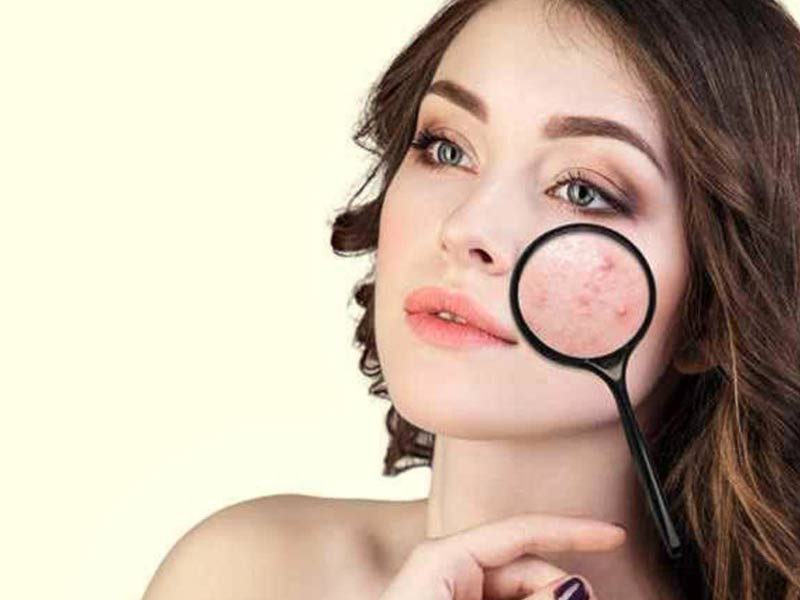 What Is Cystic Acne? Identification, Causes, Treatment and Precautions