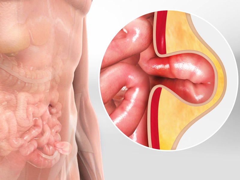 How is Hernia Caused? Know Symptoms and Treatment Method