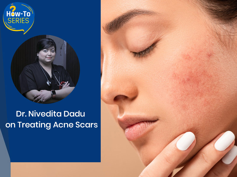 How To Treat Acne Scars? Dermatologist Dr. Nivedita Dadu Shares Tips