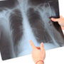 What are the Risk Factors for <strong>Tuberculosis</strong>?