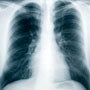 How Tuberculosis Spreads