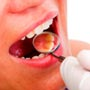 What is the Treatment for Tooth Decay?